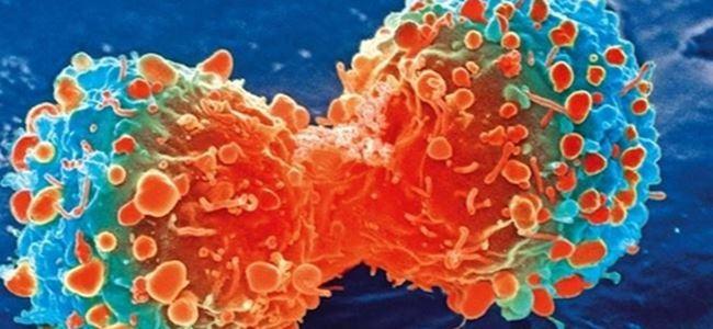 Kanseri ''can damarından vuran'' yöntem bulundu