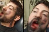 Elektronik sigara faciası