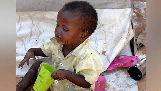 Photo of Doğu Afrika'da milyonlarca kişi açlığın pençesinde