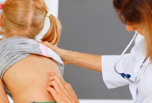 Omurga eğriliği solunum yetmezliği nedeni