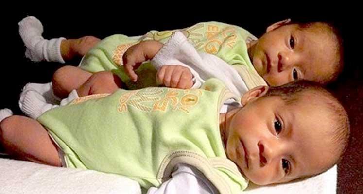 Photo of Tek yumurta ikizleri moleküler açıdan da benzer