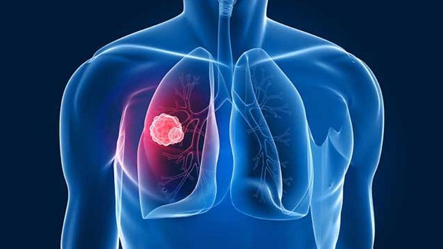 Karaciğer kanseri: ne kadar yaşamak Semptomlar, nedenleri ve tahminleri