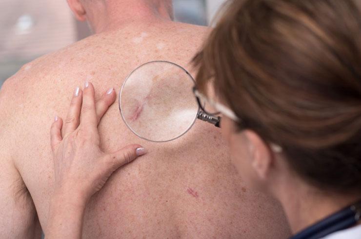 Cilt Kanseri Nasıl Teşhis Edilir? Tedavi Yöntemleri Nelerdir?