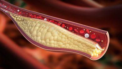 Photo of Kolesterol Nedir? Nasıl Düşürülür? Doğal Yollarla Kolesterol Nasıl Dengelenir?