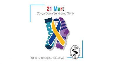 Photo of Down Sendromu Farkındalık Günü