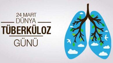 Photo of 24 Mart Dünya Tüberküloz Günü