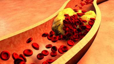 Photo of Damar Sertliği Nedir? Arteriyoskleroz / Ateroskleroz Belirtileri ve Nedenleri