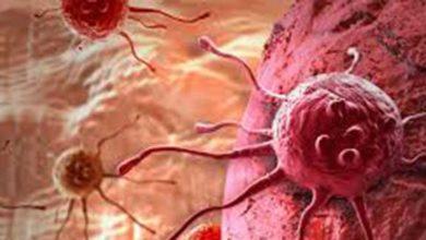 Photo of Kanser oluşmadan on yıllar önce tespit edilebilir