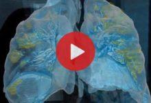 Photo of Covid-19 taşıyan bir hastanın akciğer görüntüleri