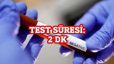 Photo of ABD'de 2 dakikada sonuç veren Corona virüs testine onay