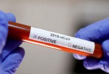 Photo of Koronavirüs'ü yenen kişilerin kanı yeni hastaları iyileştirebilir mi?