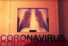 Photo of Günden güne koronavirüs semptomlarının seyri