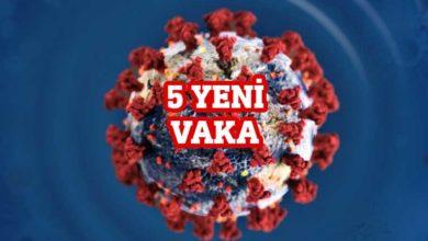 Photo of Pilli: 5 yeni vaka