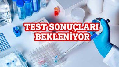 Photo of Lefke'de PCR test sonuçları bekleniyor