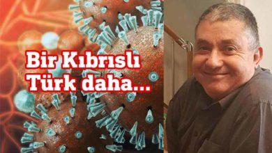Photo of Türker Enver koronaya yenik düştü