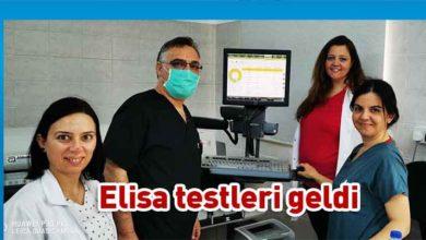 Photo of Devlet bağışıklık testi yapmaya başladı