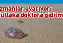 Photo of Denizanası çarpması durumunda yapılacaklar