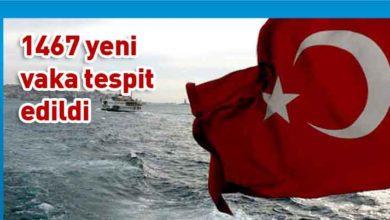 Photo of Türkiye'de koronavirüs nedeniyle 17 kişi hayatını kaybetti