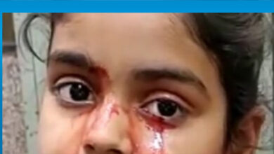 Photo of Hindistan'da 11 yaşındaki kız çocuğu nadir bir hastalık nedeniyle kan ağlıyor