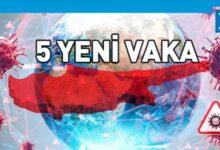 Photo of Güney Kıbrıs'ta vaka sayısı 1124'e yükseldi