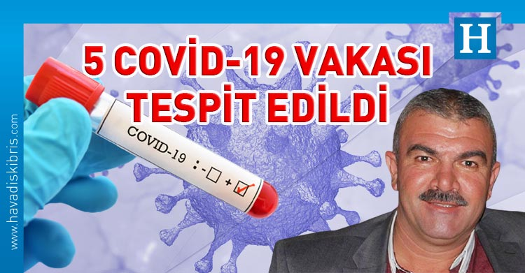 dipkarpaz'da covid-19