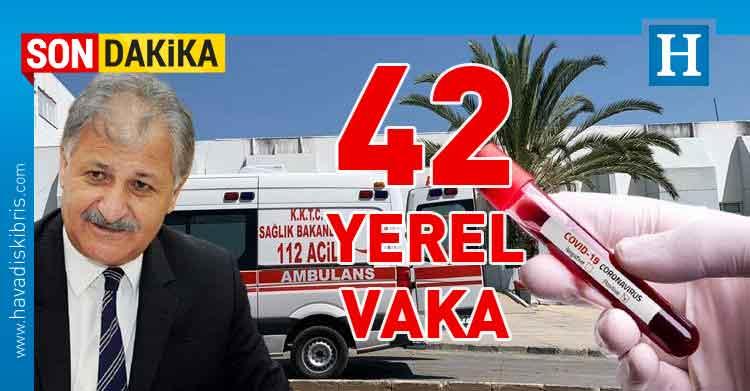 KKTC Sağlık Bakanı Dr. Ali Pilli,